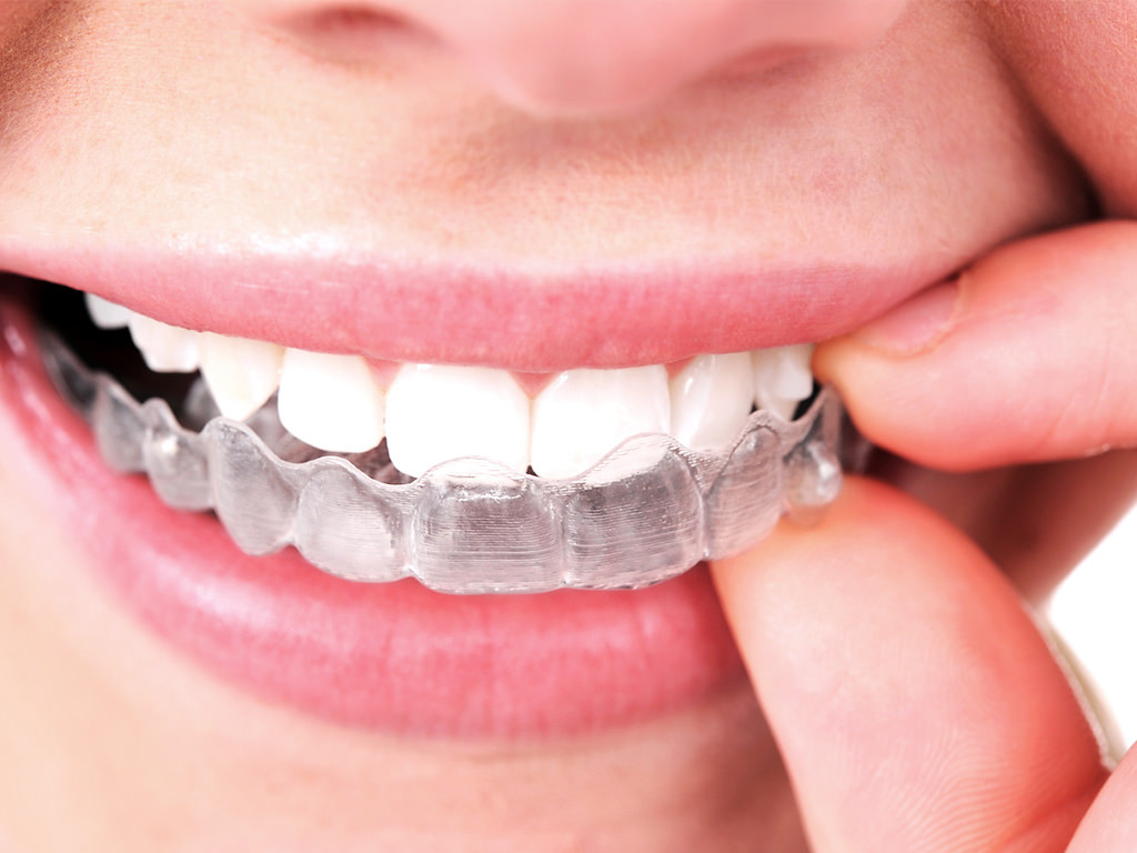 Maintaining Your Post-Invisible Aligner Smile